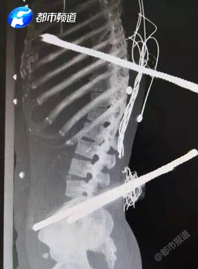 看着都疼!驻马店:一男子高处坠落 三根钢筋刺入身体
