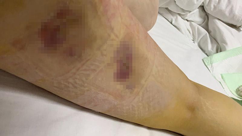 """郑州安和整形:女子花2万元美腿失败,手术治疗四个多月""""一走路就疼"""""""