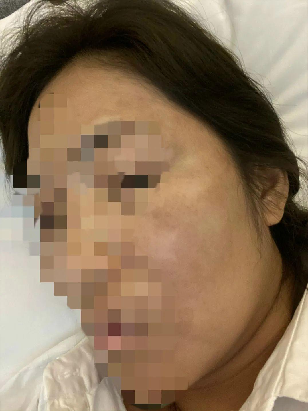 河南整形美容医院又出事了!女子花费20万被整成了花猫脸!