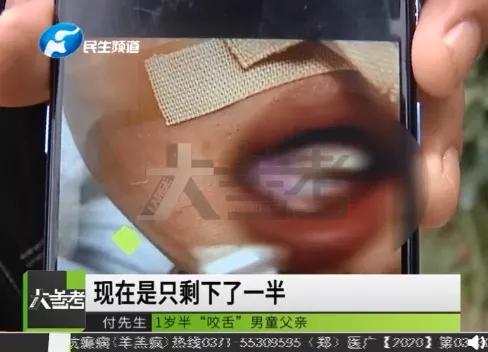 联播pro:郑州市紧急提示 如无特殊情况 近期不前往这两地