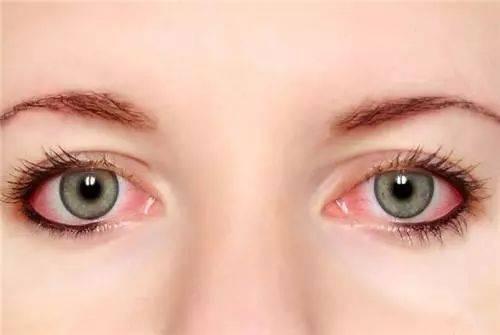 熬夜后眼睛红又痛,可能是葡萄膜炎找上门
