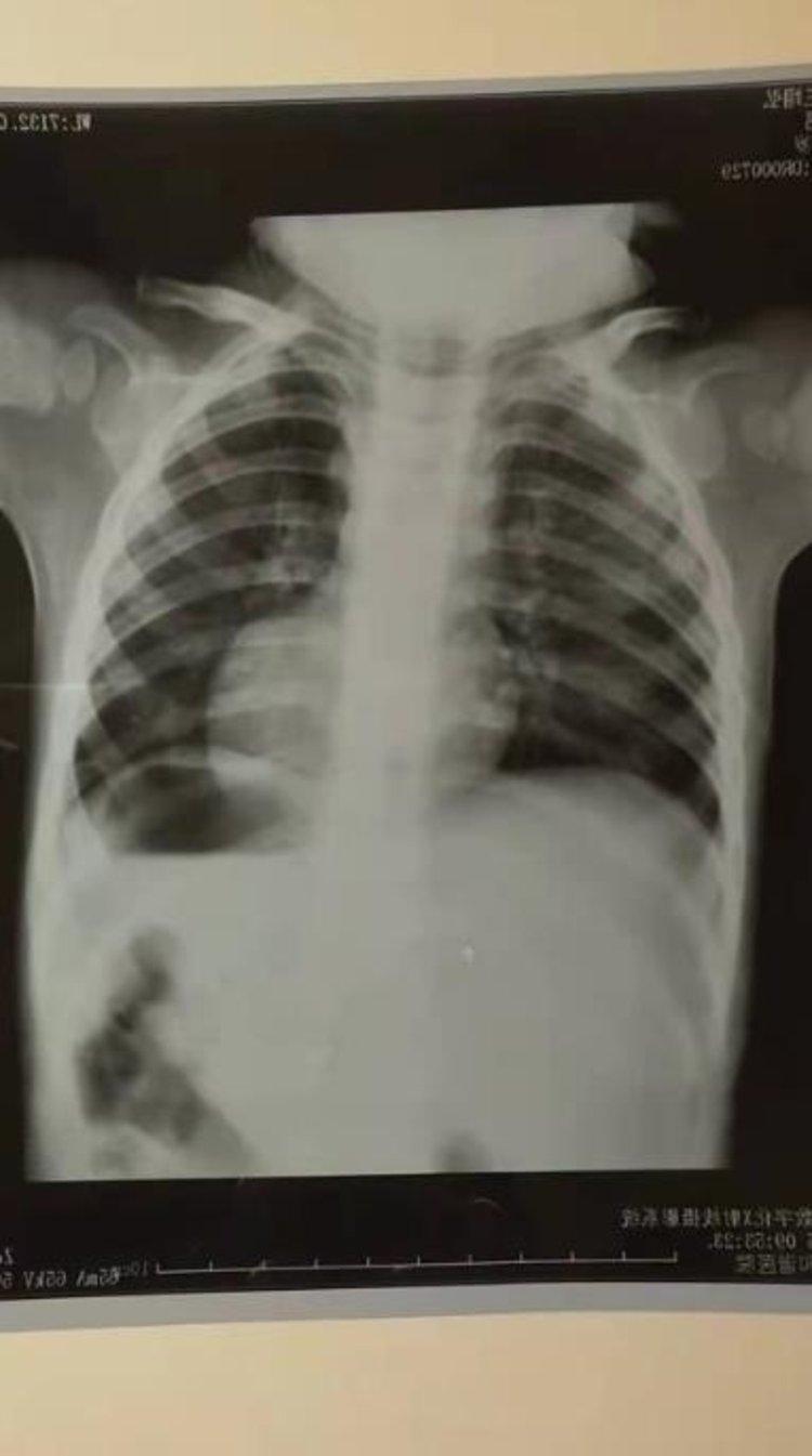 """山西1岁男童高烧找""""儿科专家""""治疗 输液后突然没了生命迹象"""