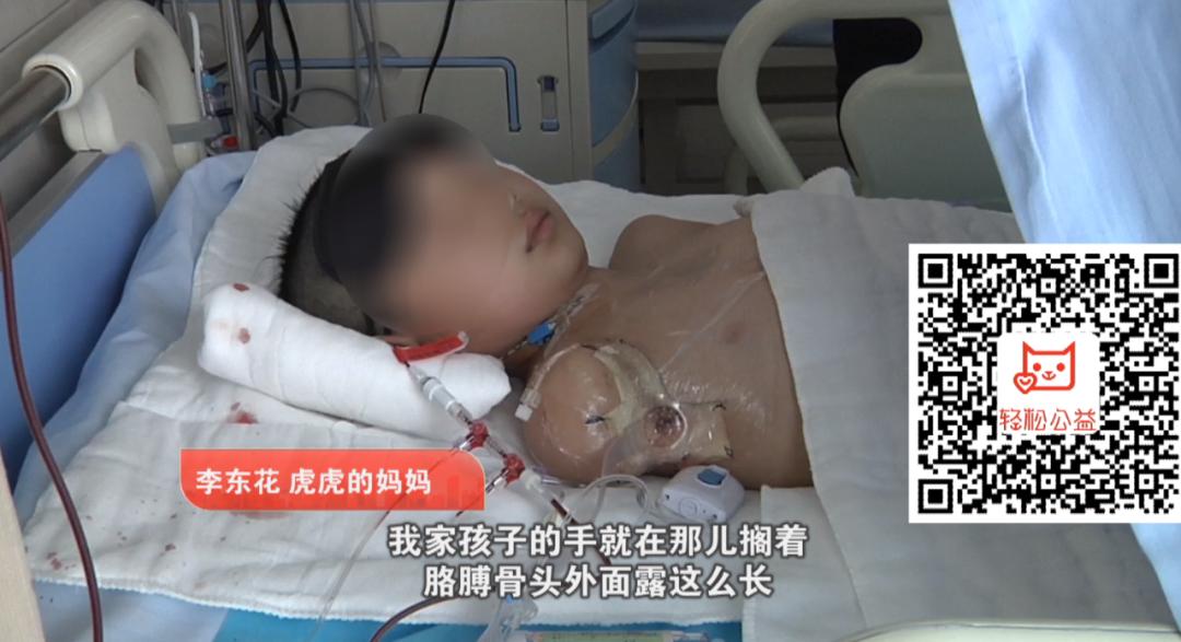 心疼!新乡10岁孩子电击截肢 母亲外表故作坚强